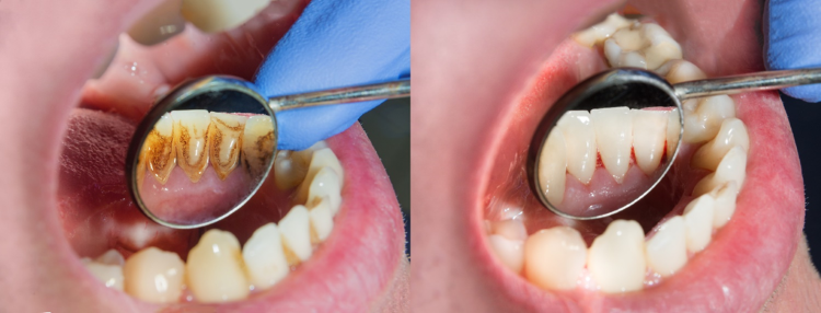 A before and after of a dentist examining a dirty set and a clean set of teeth.