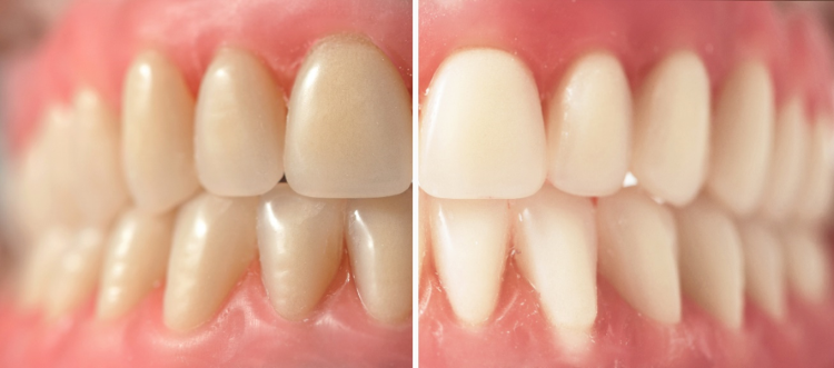 A side by side comparison of teeth before and after whitening.
