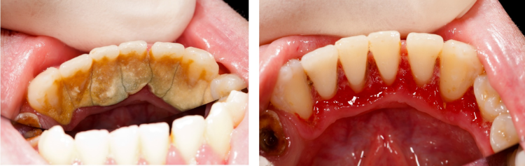 A before and after of a mouth with severe gum disease and a healthy mouth.