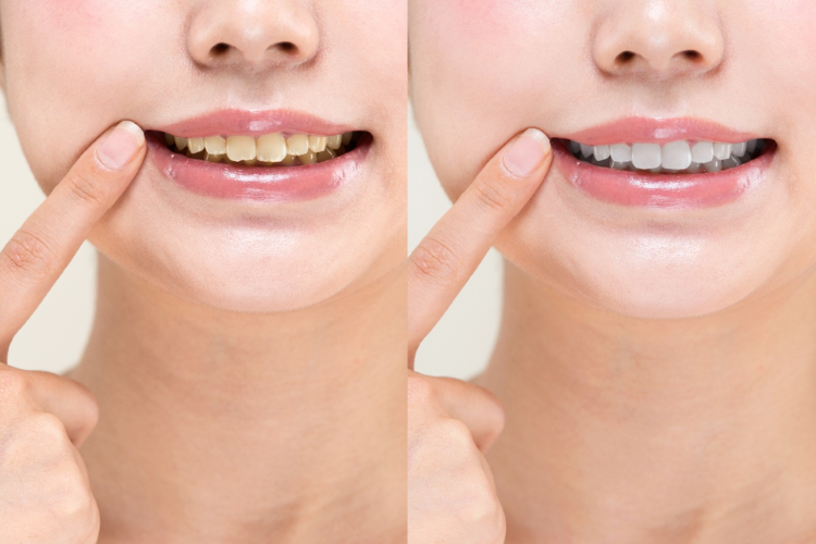 A before and after of a woman with yellow teeth and whitened teeth pointing to her mouth